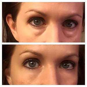 Instantly Ageless Anti Wrinkle Cream